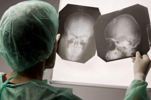 Сотрясение головного мозга статья ук рф